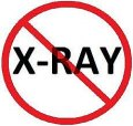 British Columbia Bans X-Rays for Vertebral Subluxation Assessment